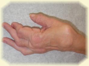 Handgelenk Gelenkersatz